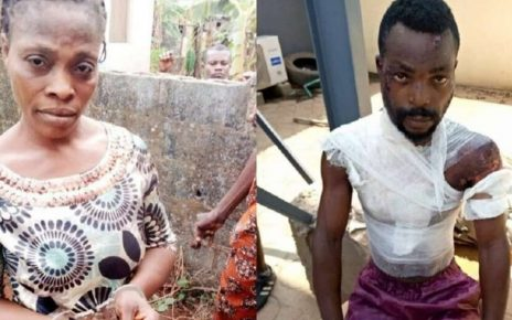 Woman Pours Hot Water On Husband; He Was Drunk