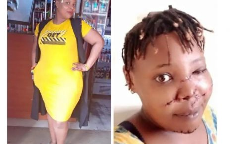 Beautiful Kenyan Lady Mercilessly Slashed On The Face By Insecure Ex-Boyfriend (PHOTOs)