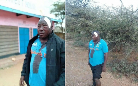 Pupils at Oldo in Isiolo brutally attack a teacher disfiguring his face(PHOTOs).