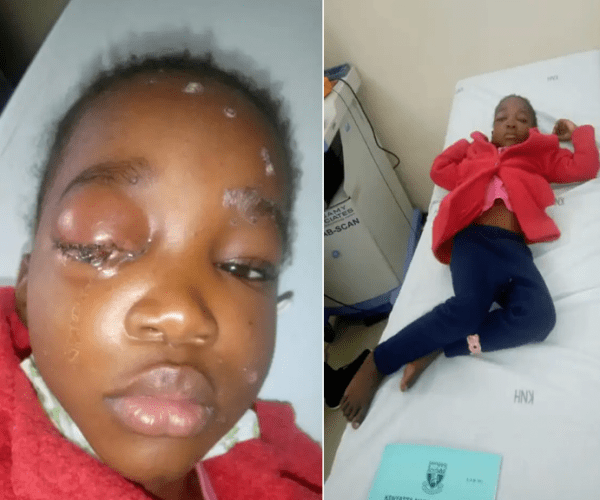 Teacher beats 5-year girl leaving her with injuries -This is inhuman (PHOTOs).