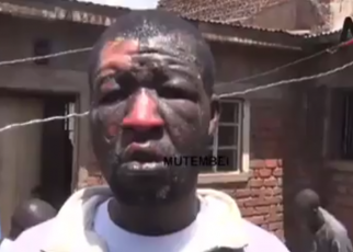 DRAMA-Migori man badly burnt by wife after argument over bedroom matters (VIDEO)